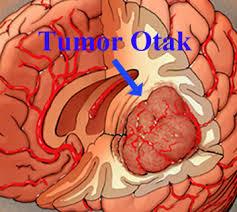 cara mengobati tumor otak